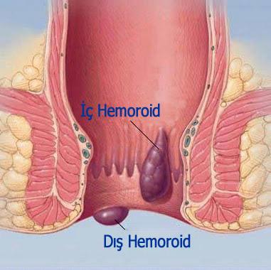 hemoroid resimleri